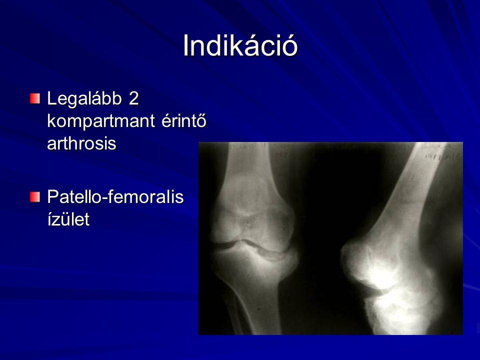 Indikáció Legalább 2 kompartmant érintő arthrosis