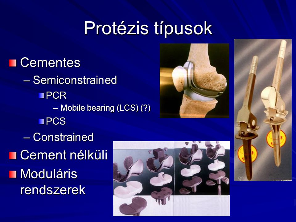 Protézis típusok Cementes Cement nélküli Moduláris rendszerek