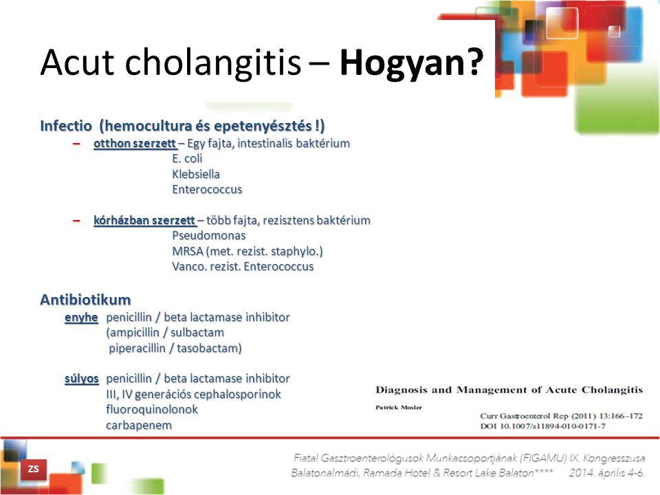 Acut cholangitis – Hogyan