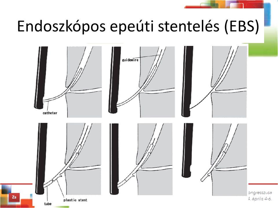 Endoszkópos epeúti stentelés (EBS)