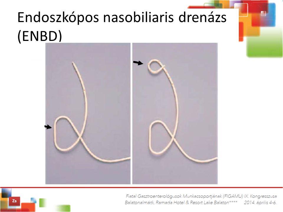 Endoszkópos nasobiliaris drenázs (ENBD)