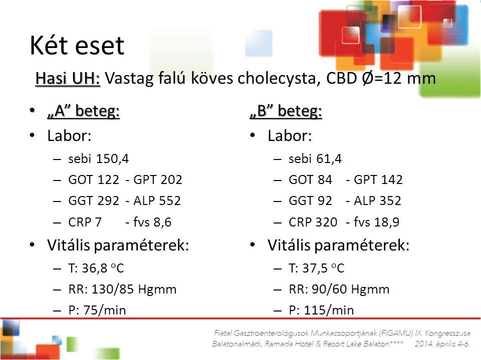 "Két eset Hasi UH: Vastag falú köves cholecysta, CBD Ø=12 mm ""A beteg:"