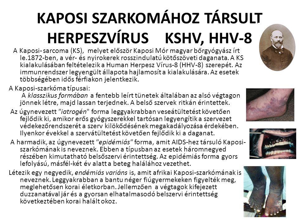 KAPOSI SZARKOMÁHOZ TÁRSULT HERPESZVÍRUS KSHV, HHV-8