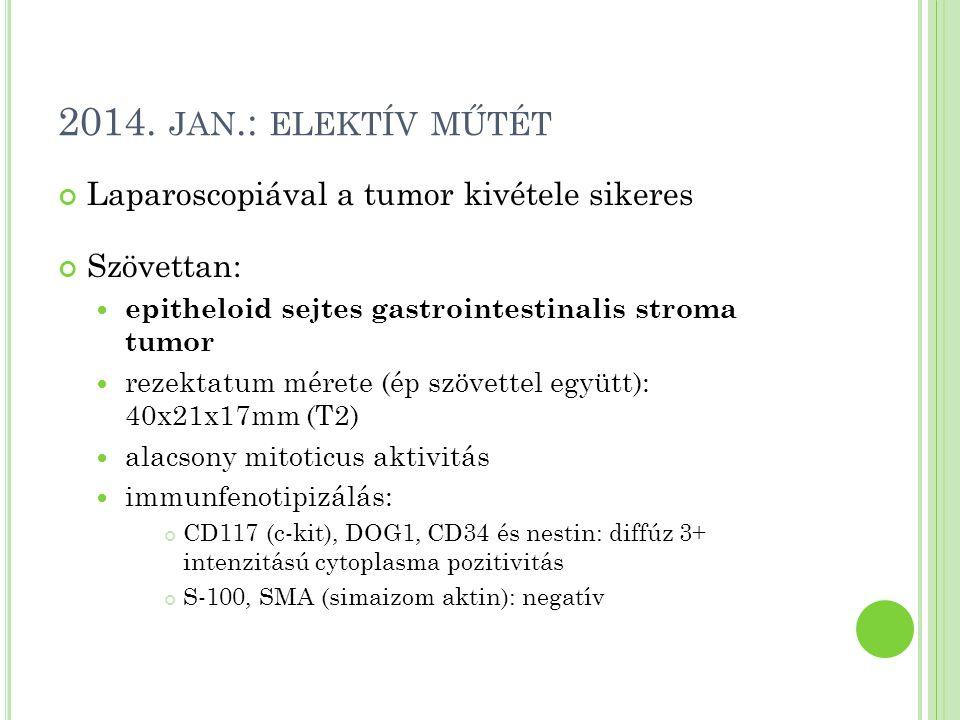 2014. jan.: elektív műtét Laparoscopiával a tumor kivétele sikeres