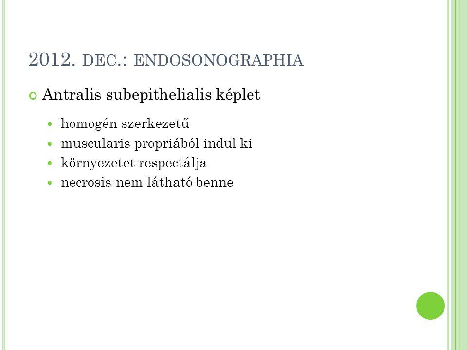2012. dec.: endosonographia Antralis subepithelialis képlet