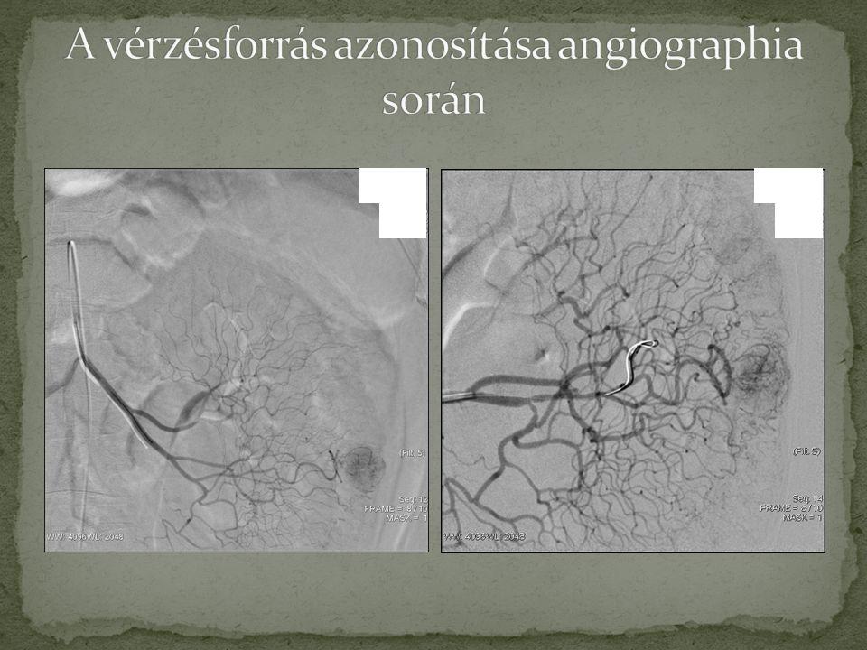 A vérzésforrás azonosítása angiographia során