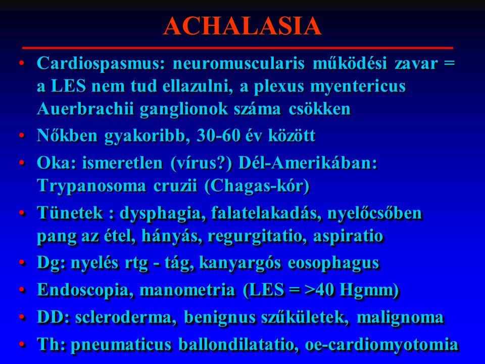 ACHALASIA Cardiospasmus: neuromuscularis működési zavar = a LES nem tud ellazulni, a plexus myentericus Auerbrachii ganglionok száma csökken.