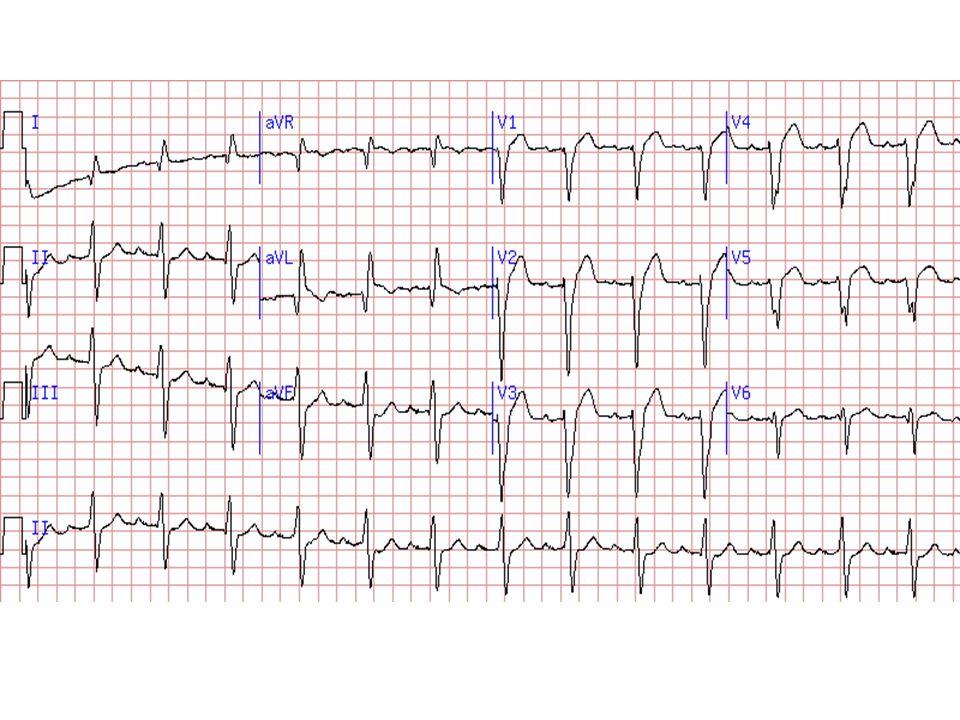 Korábbi extensív anterior infarctusra utaló kép Q:I-aVL, Cabrera jel, R redukció