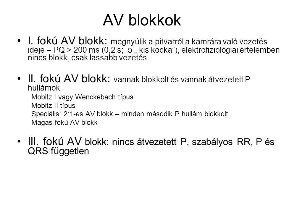 AV blokkok