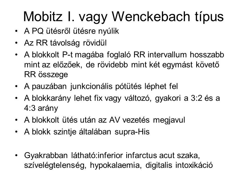 Mobitz I. vagy Wenckebach típus