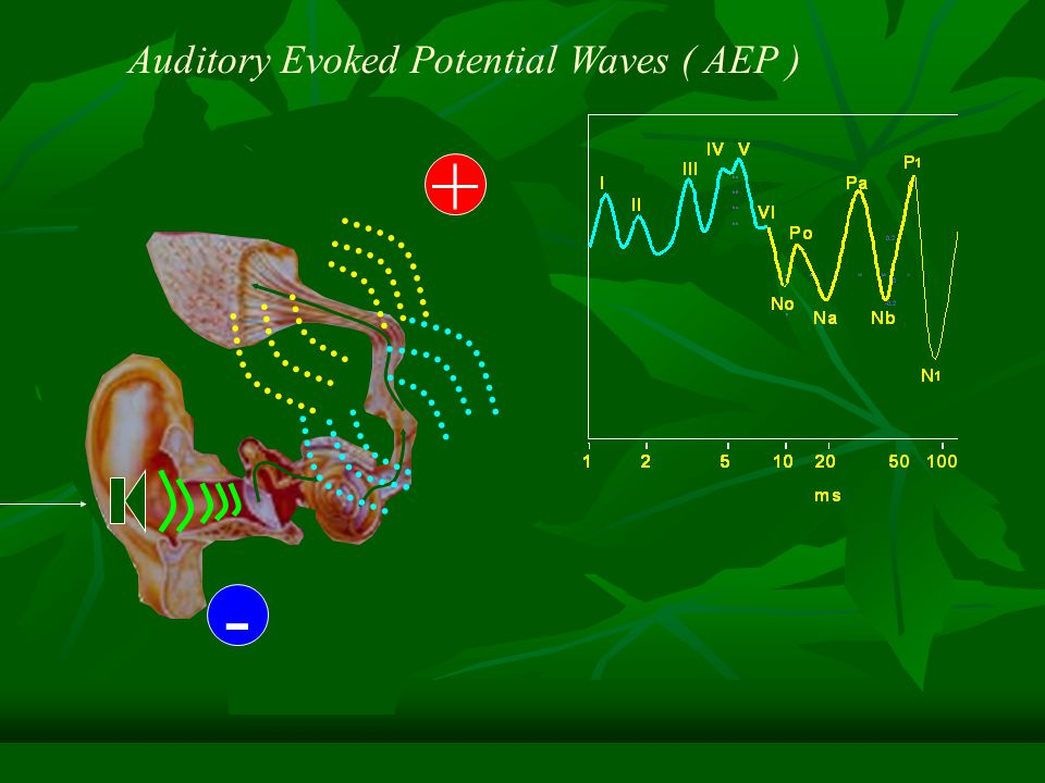 Auditory Evoked Potential Waves ( AEP )