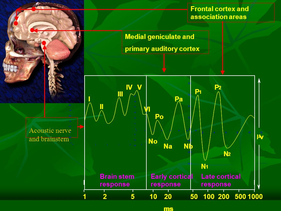Acoustic nerve and brainstem Medial geniculate and