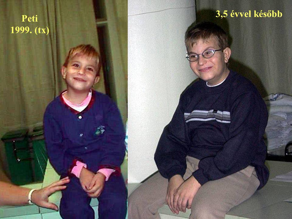 3,5 évvel később Peti 1999. (tx)