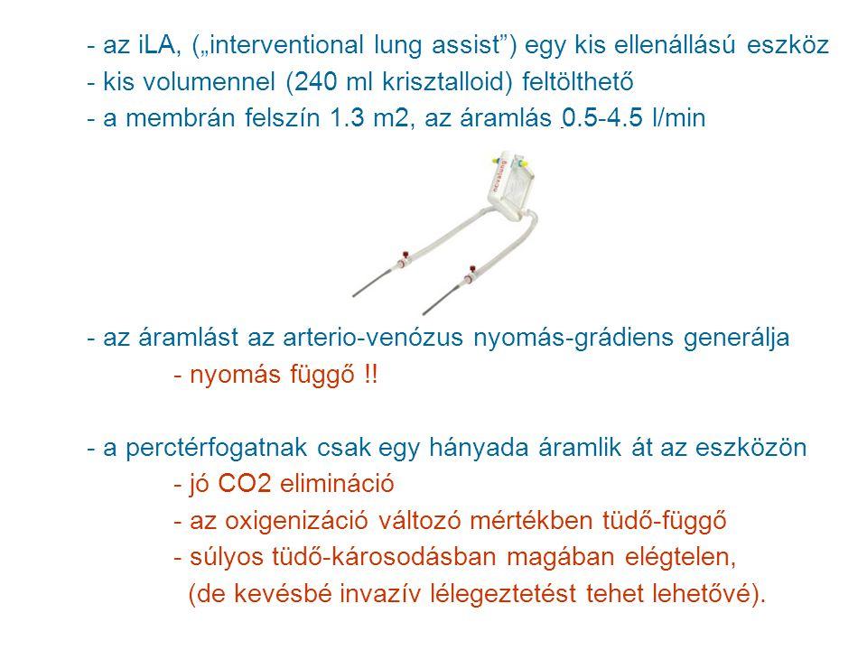 """az iLA, (""""interventional lung assist ) egy kis ellenállású eszköz"""