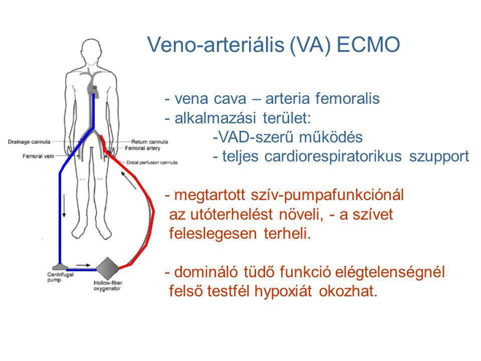 Veno-arteriális (VA) ECMO