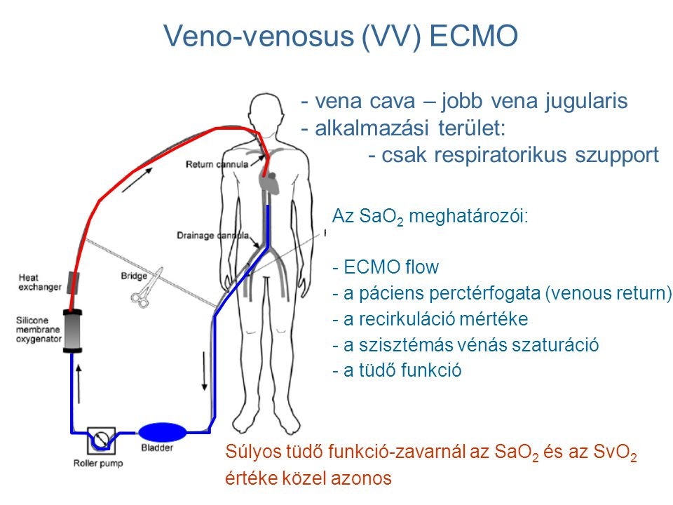 Veno-venosus (VV) ECMO