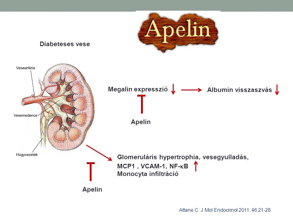 Glomeruláris hypertrophia, vesegyulladás, MCP1 , VCAM-1, NF-B