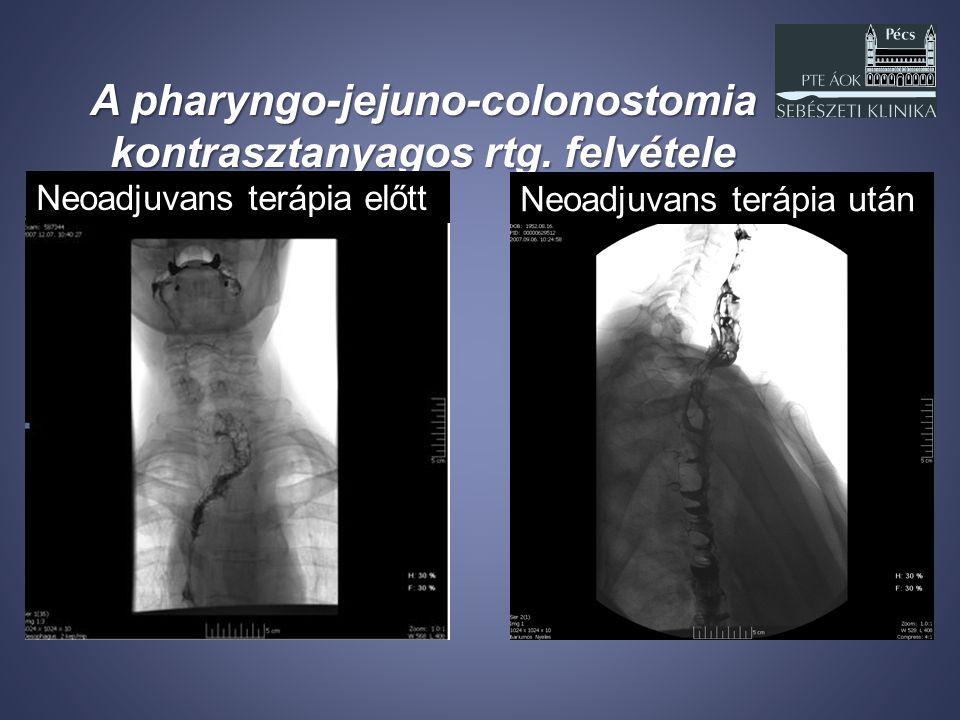 A pharyngo-jejuno-colonostomia kontrasztanyagos rtg. felvétele