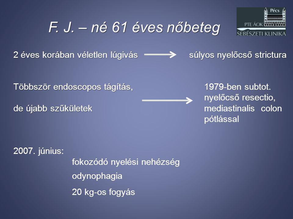 F. J. – né 61 éves nőbeteg 2 éves korában véletlen lúgivás súlyos nyelőcső strictura. Többször endoscopos tágítás, 1979-ben subtot.