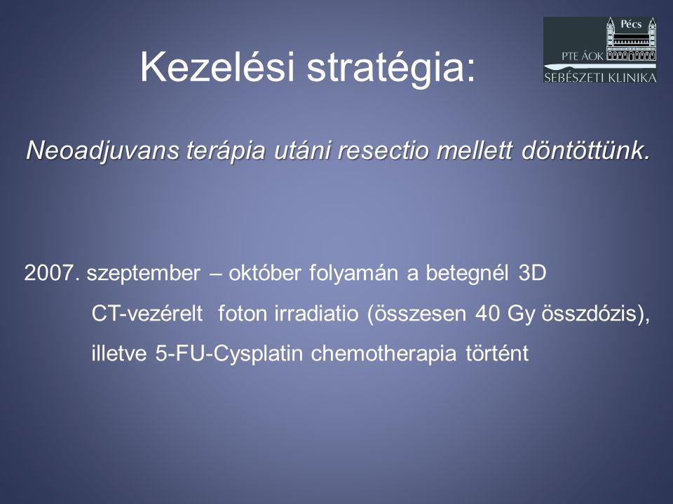 Kezelési stratégia: Neoadjuvans terápia utáni resectio mellett döntöttünk. 2007. szeptember – október folyamán a betegnél 3D.