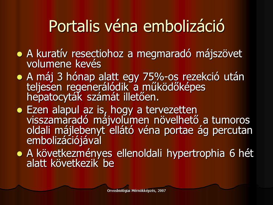 Portalis véna embolizáció