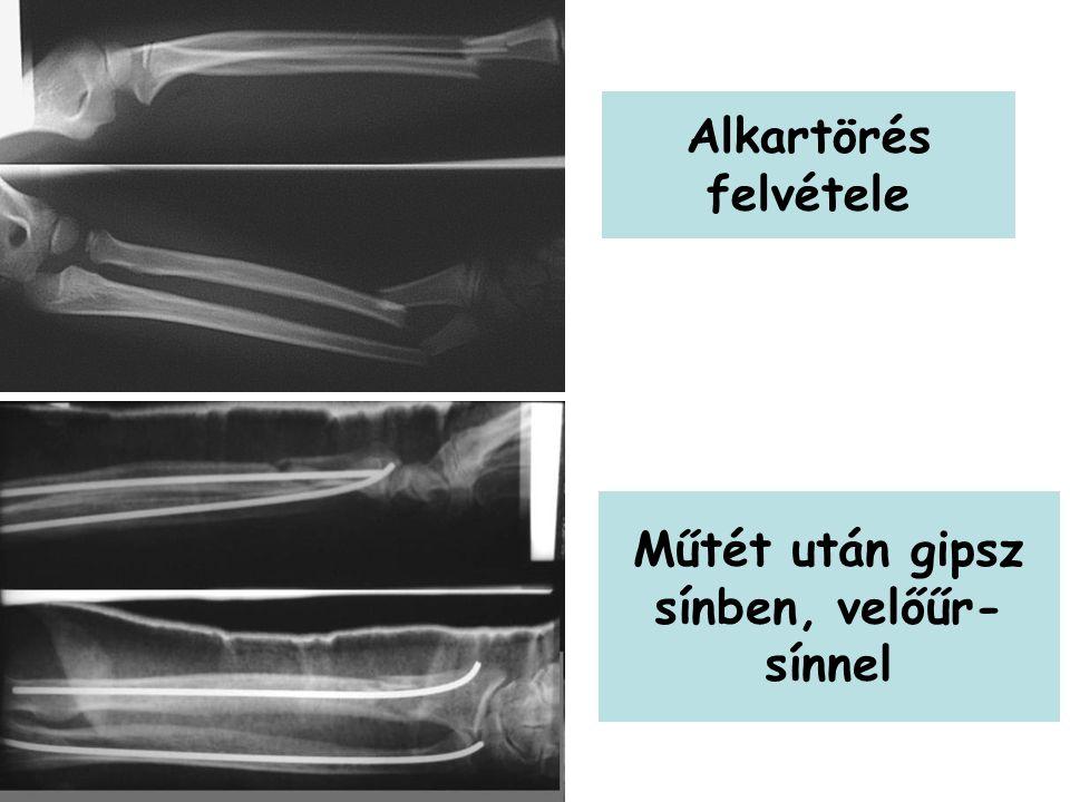 Műtét után gipsz sínben, velőűr-sínnel