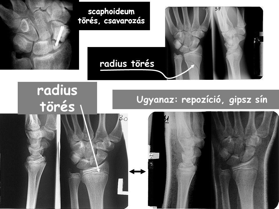 scaphoideum törés, csavarozás Ugyanaz: repozíció, gipsz sín