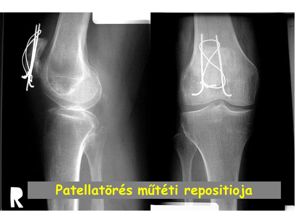 Patellatörés műtéti repositioja