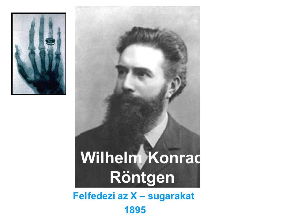 Wilhelm Konrad Röntgen Felfedezi az X – sugarakat