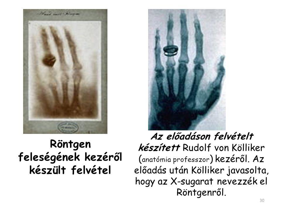 Röntgen feleségének kezéről készült felvétel