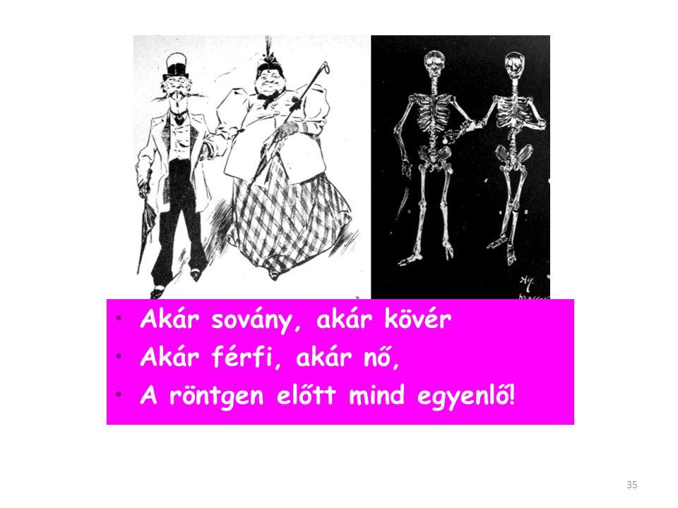 Akár sovány, akár kövér Akár férfi, akár nő, A röntgen előtt mind egyenlő!