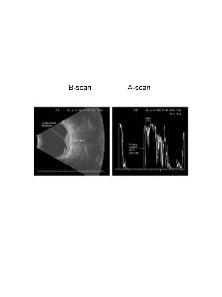 B-scan A-scan