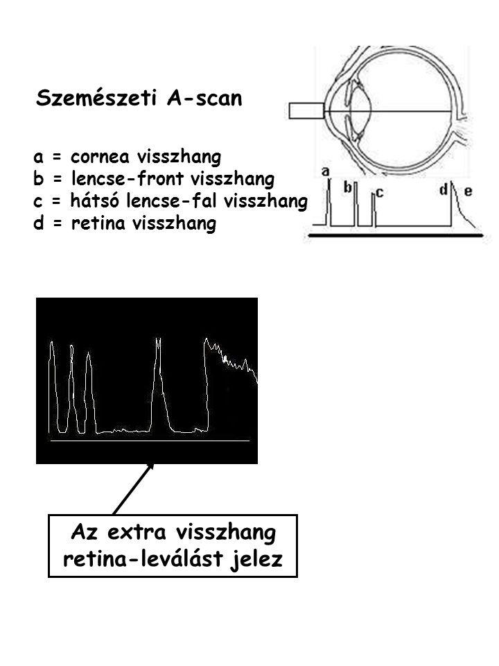 Az extra visszhang retina-leválást jelez