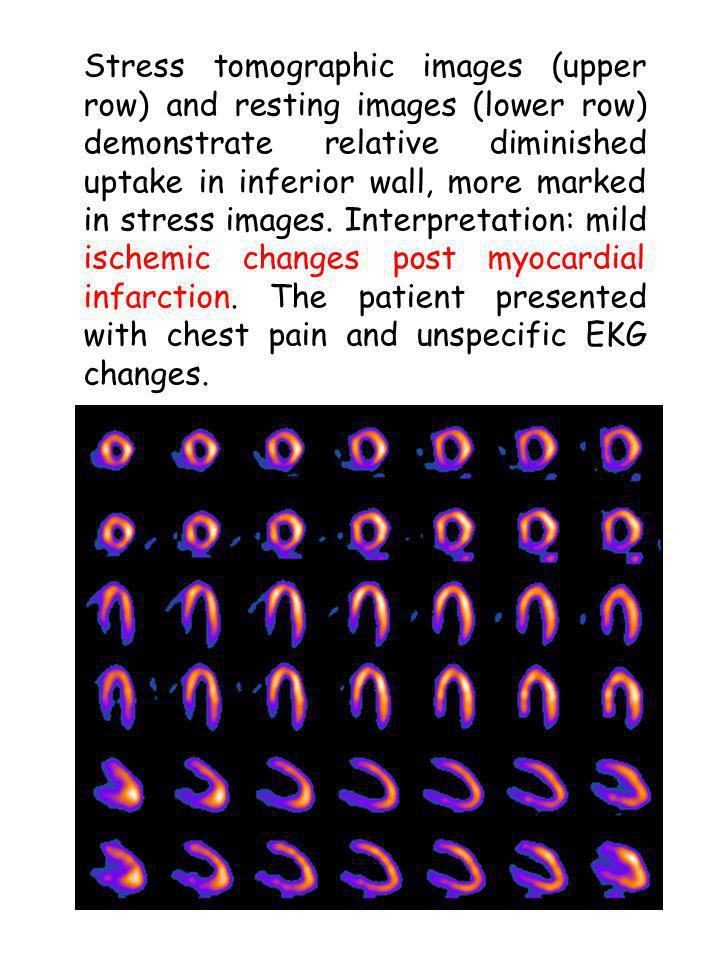 Stress tomographic images (upper row) and resting images (lower row) demonstrate relative diminished uptake in inferior wall, more marked in stress images.