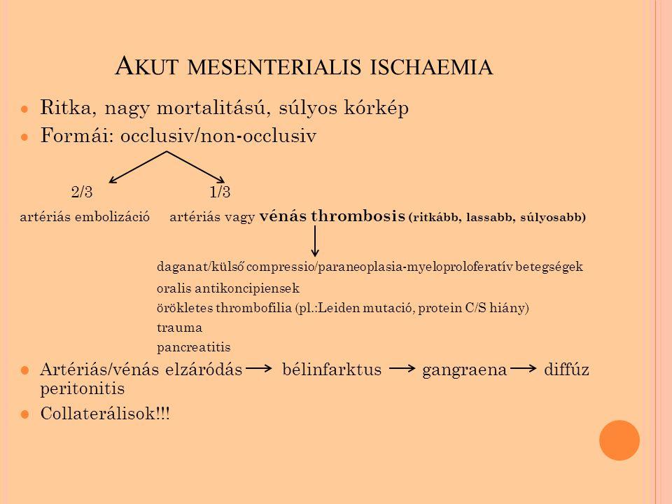 Akut mesenterialis ischaemia