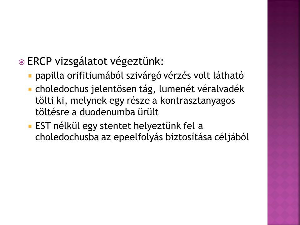 ERCP vizsgálatot végeztünk: