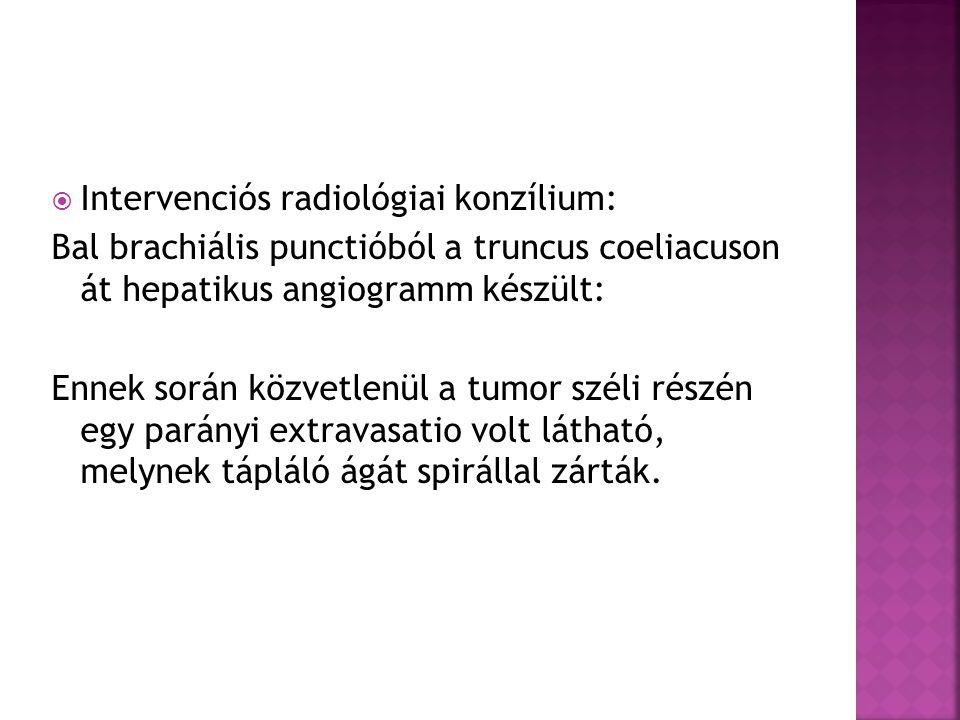 Intervenciós radiológiai konzílium: