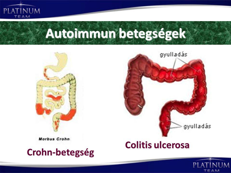 Autoimmun betegségek Colitis ulcerosa Crohn-betegség