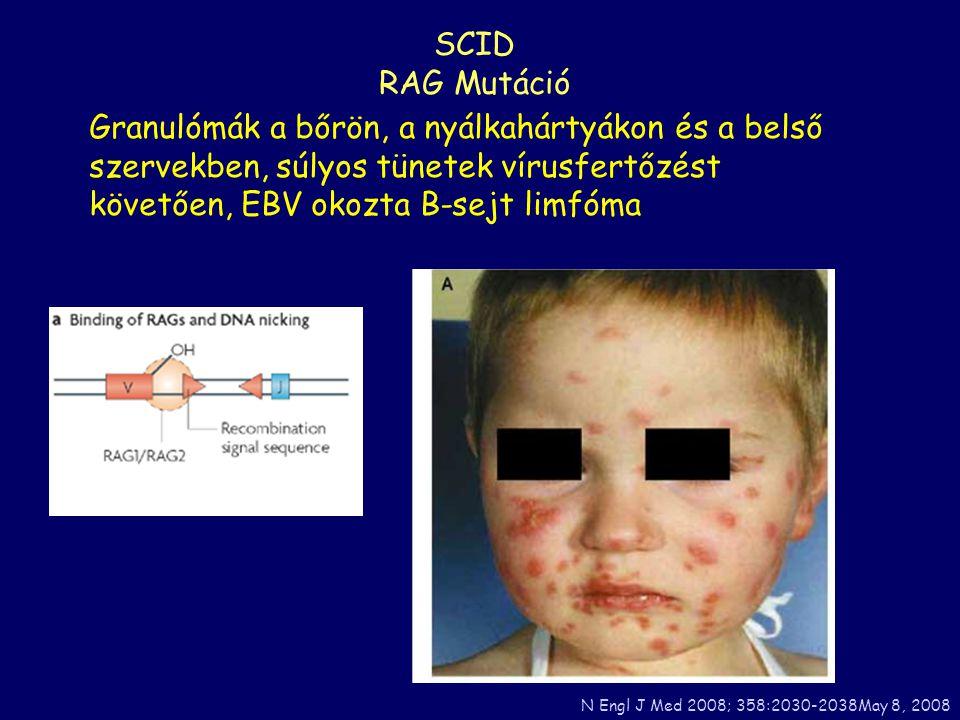 SCID RAG Mutáció. Granulómák a bőrön, a nyálkahártyákon és a belső szervekben, súlyos tünetek vírusfertőzést követően, EBV okozta B-sejt limfóma.