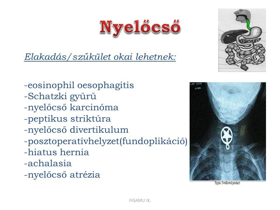 Nyelőcső Elakadás/szűkület okai lehetnek: -eosinophil oesophagitis