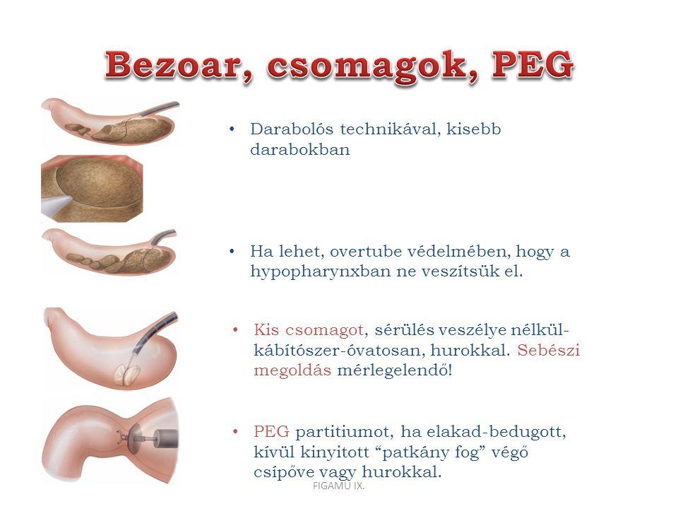 Bezoar, csomagok, PEG Darabolós technikával, kisebb darabokban
