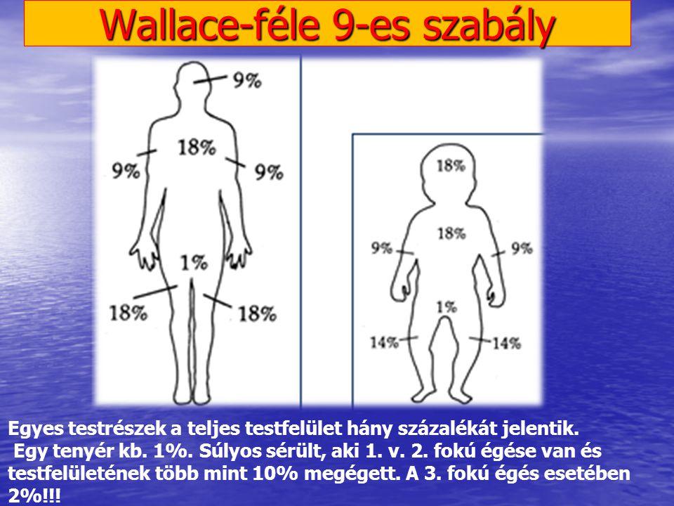 Wallace-féle 9-es szabály