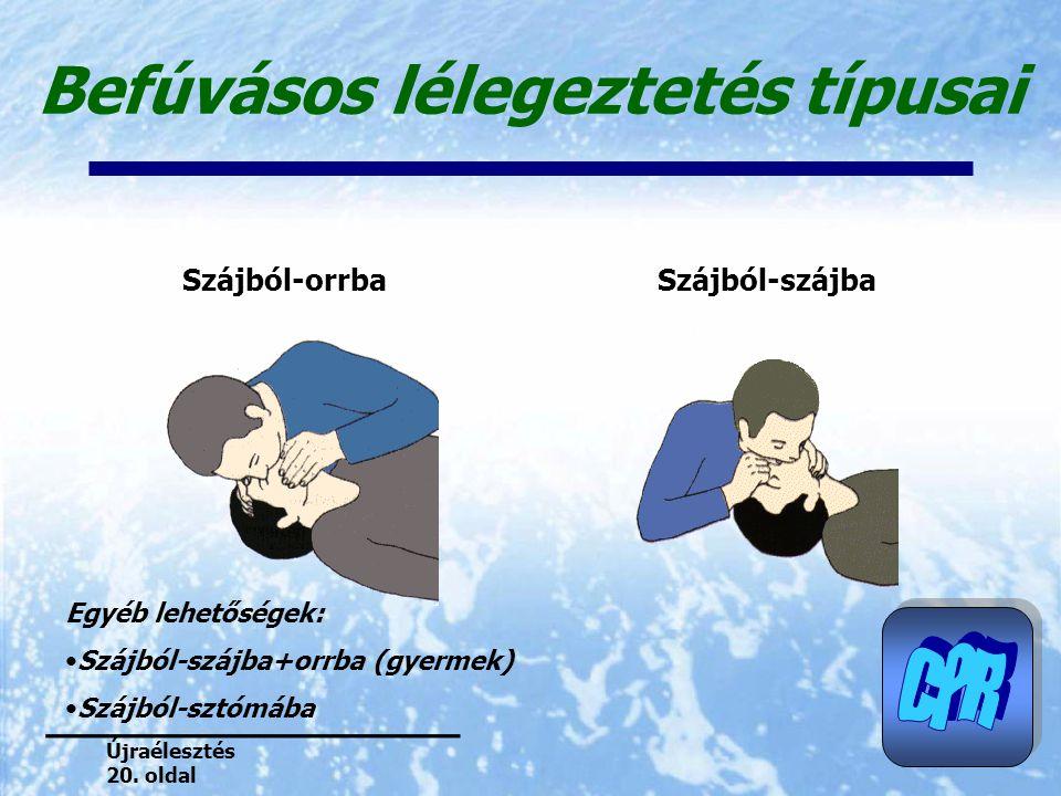 Befúvásos lélegeztetés típusai