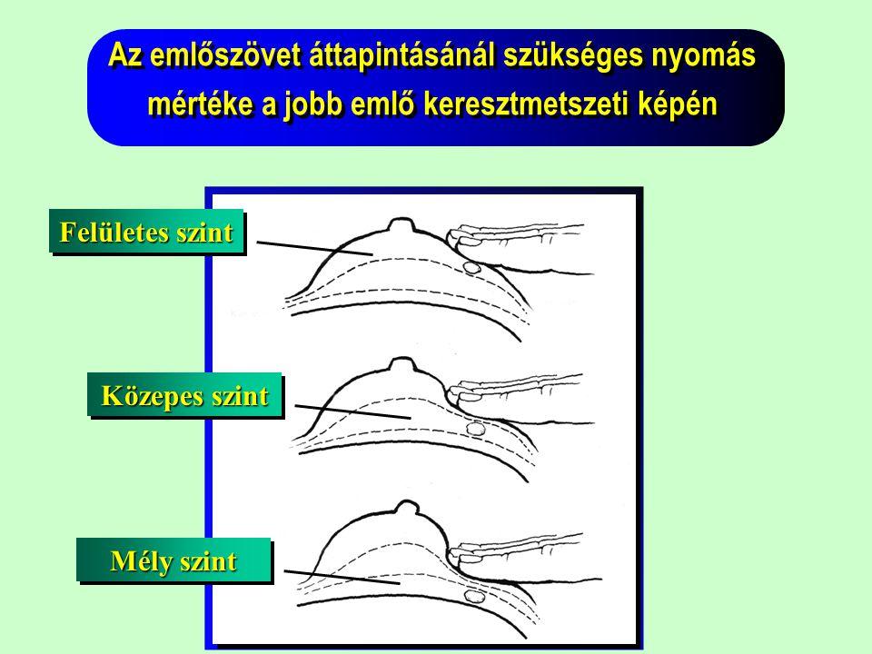 Az emlőszövet áttapintásánál szükséges nyomás mértéke a jobb emlő keresztmetszeti képén
