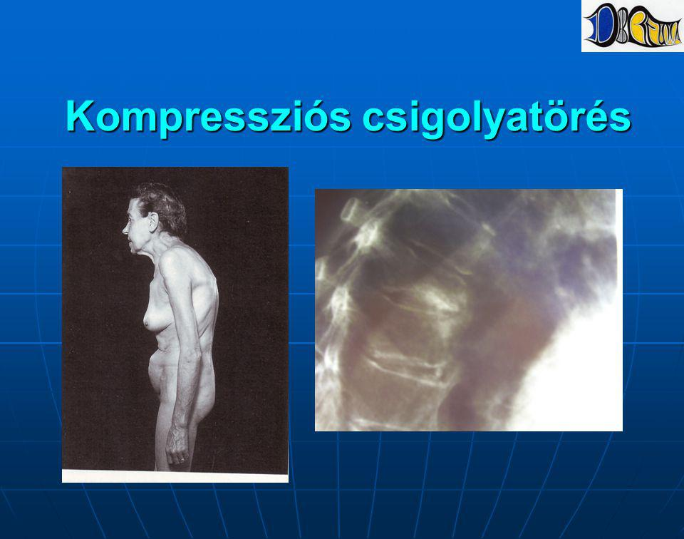 Kompressziós csigolyatörés