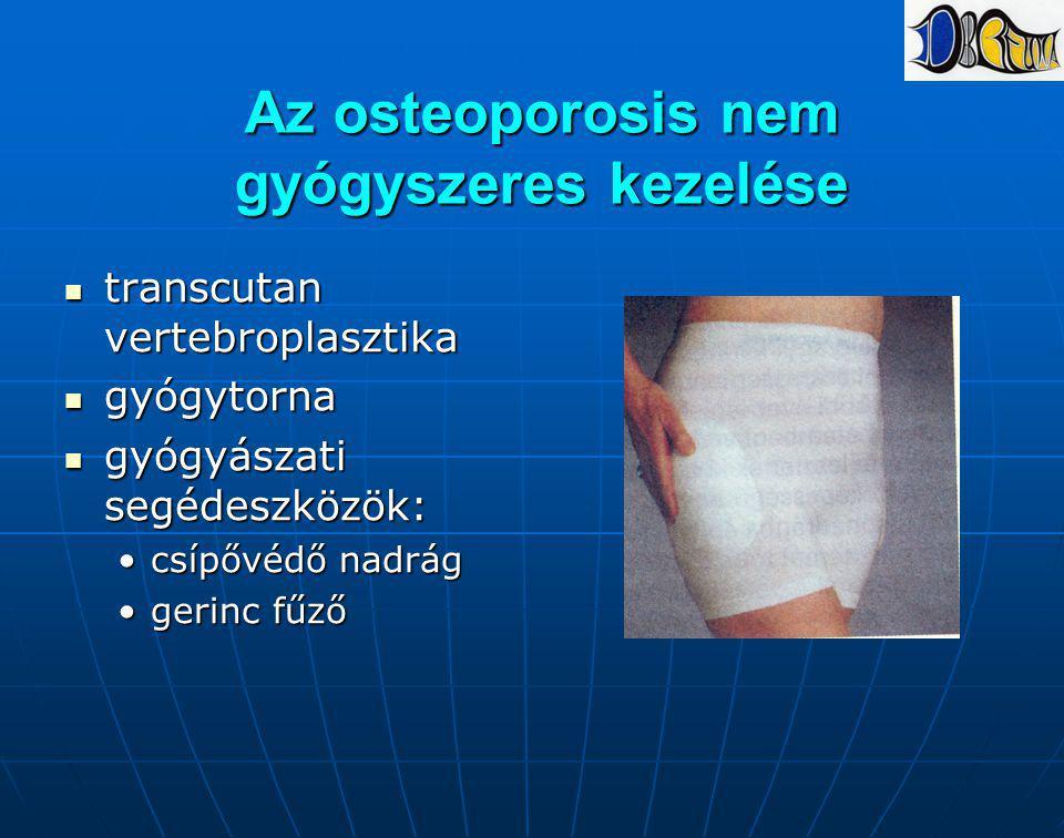 Az osteoporosis nem gyógyszeres kezelése