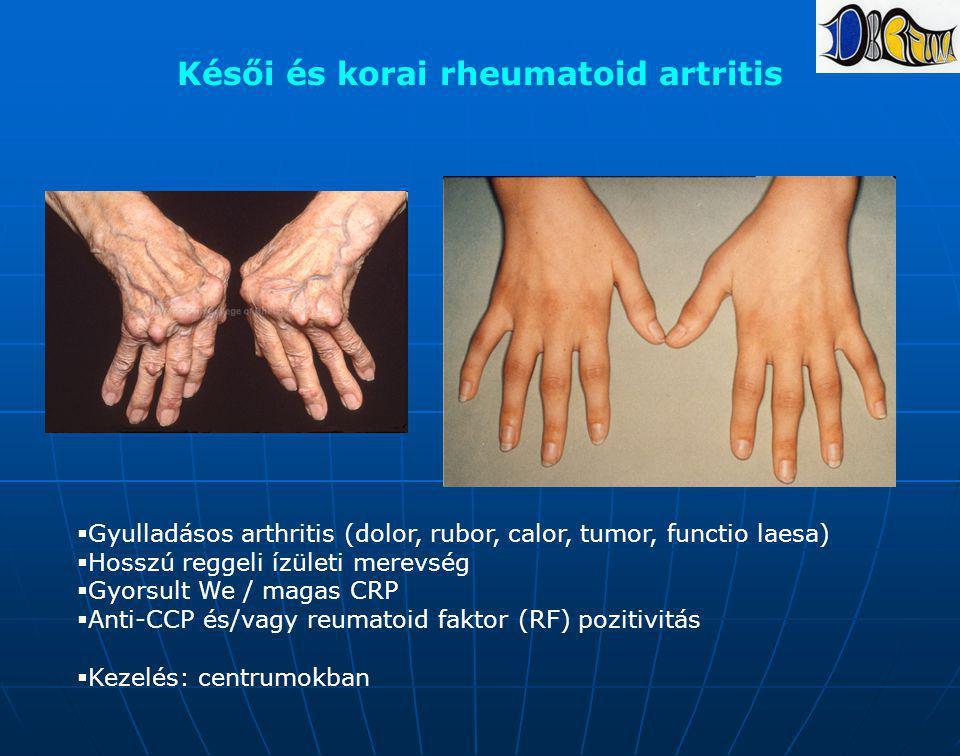 Késői és korai rheumatoid artritis