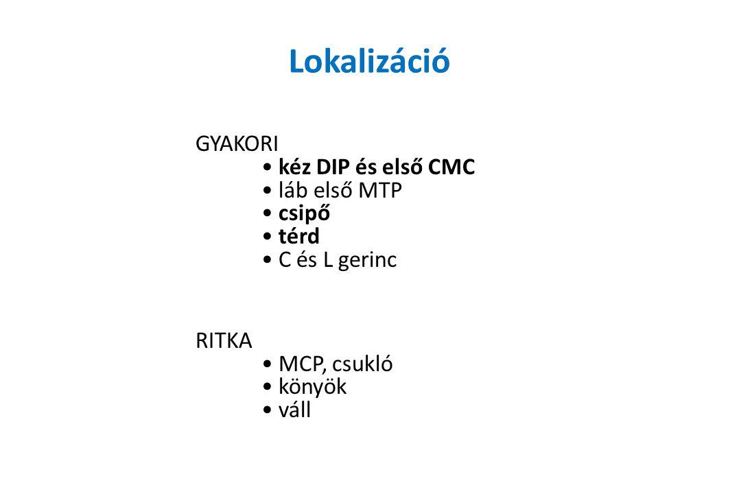 Lokalizáció GYAKORI • kéz DIP és első CMC • láb első MTP • csipő • térd • C és L gerinc RITKA • MCP, csukló • könyök • váll