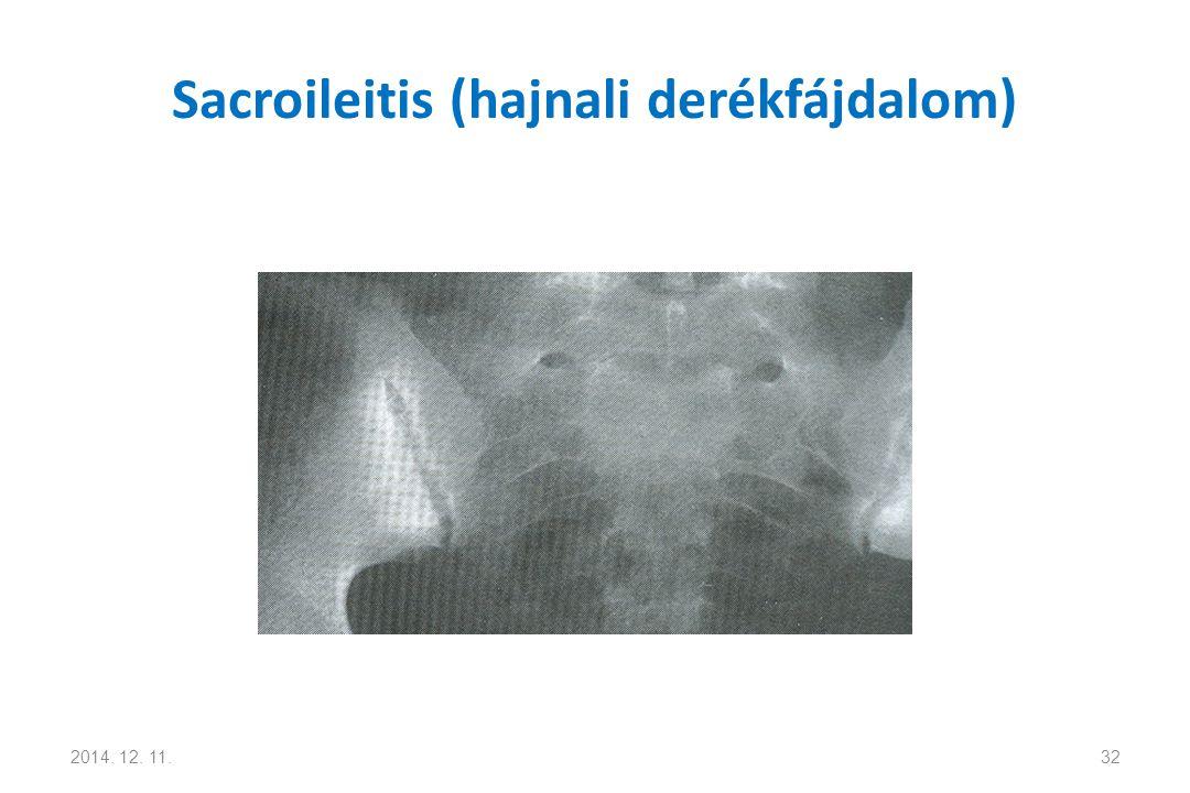 Sacroileitis (hajnali derékfájdalom)