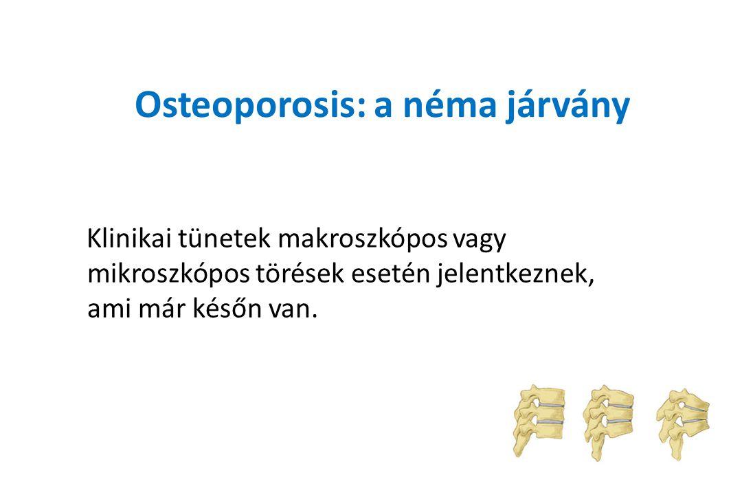 Osteoporosis: a néma járvány